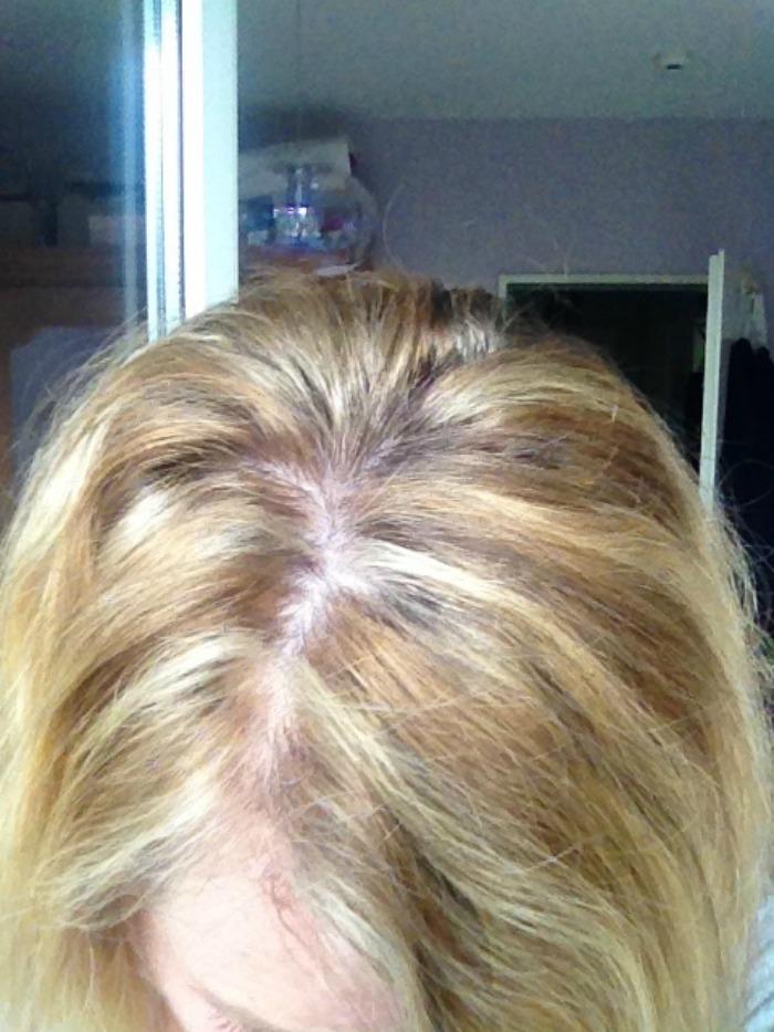 Pfusch beim Haarefärben Ansatz